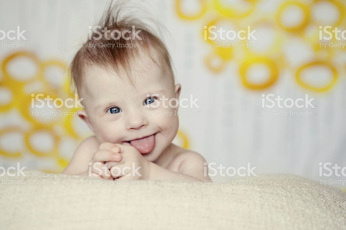 178792909-cheerful-little-baby-girl-with-downs-syndrome